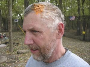 Shot in the head with a paintball