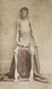 Emaciated survivor of Andersonville prison.